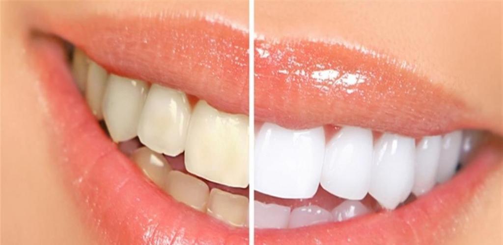 تخلصي من إصفرار الأسنان بهذه الطريقة