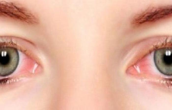 7 أسباب تؤدي إلى حرقان العين .. العدسات اللاصقة أحدها