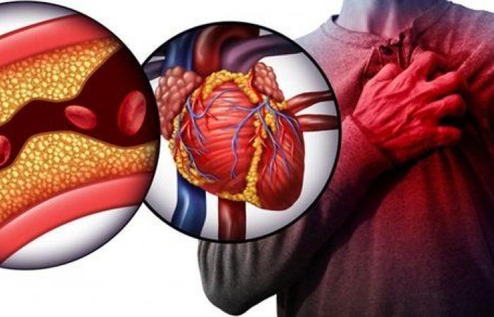 آلام العضلات أبرزها.. دواء الكوليسترول يصيبك بهذه الأعراض