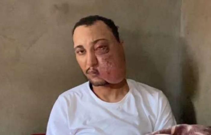 الرئيس السيسي يستجيب لعلاج شاب يعانى من ورم فى الوجه