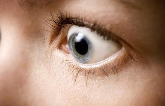 كحد أقصى أسبوعان.. علاج جحوظ العين بالكورتيزون