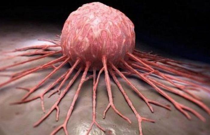 خطأ شائع يزيد نمو السرطان.. و10 أطعمة تحاربه