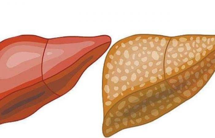 أعراض الكبد الدهني.. وأهم طرق العلاج