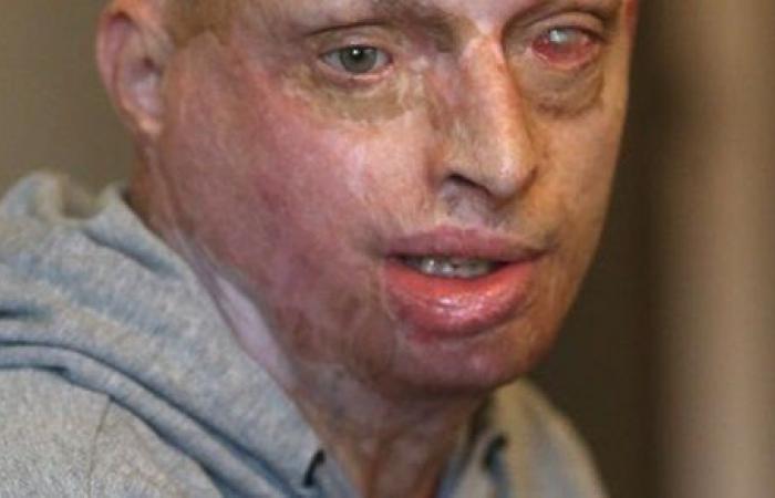 شوهت وجهه.. سيدة تسكب مادة حارقة على زوجها أثناء نومه.. صور