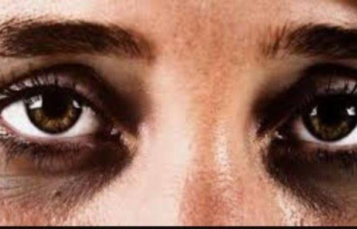 5 أسباب للهالات السوداء تحت العين