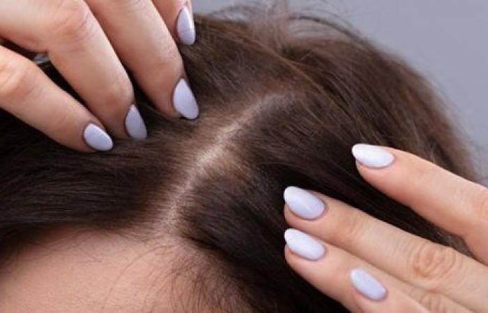 كورونا يسبب تساقط الشعر.. دراسة تحذر السيدات والرجال من الآثار السلبية طويلة المدى