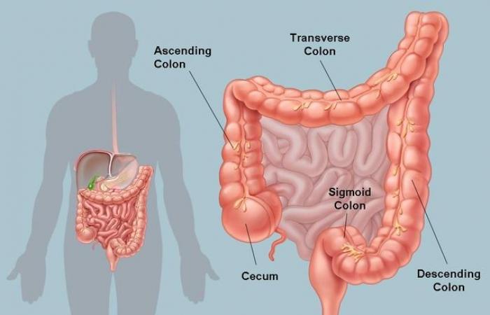 ما هو علاج القولون وأعراضه الأكثر شيوعًا؟