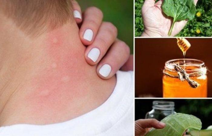 علاجات منزلية للدغات البعوض عند الأطفال