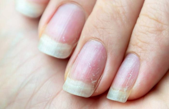 تشقق الأظافر.. حلول علمية للحفاظ على جمال الأصابع