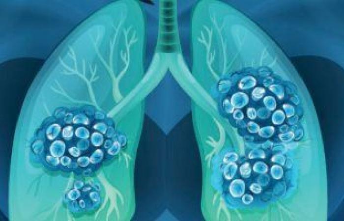 دراسة أمريكية: الأمعاء والرئة أكثر مناطق الجسم تأثرا بعدوى كورونا