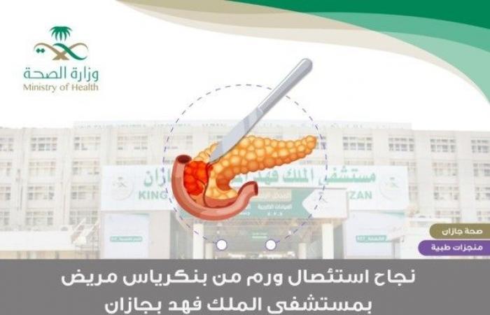 نجاح عملية استئصال ورم في البنكرياس لمريض بمستشفى الملك فهد بجازان