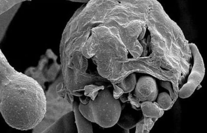 طبيب يكشف العدد الحقيقي لمرضى الفطر الأسود داخل مصر
