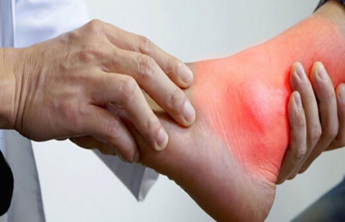 الرابطة الألمانية توضح أسباب الإصابة بـ«تآكل المفاصل» وطرق تخفيف متاعبه