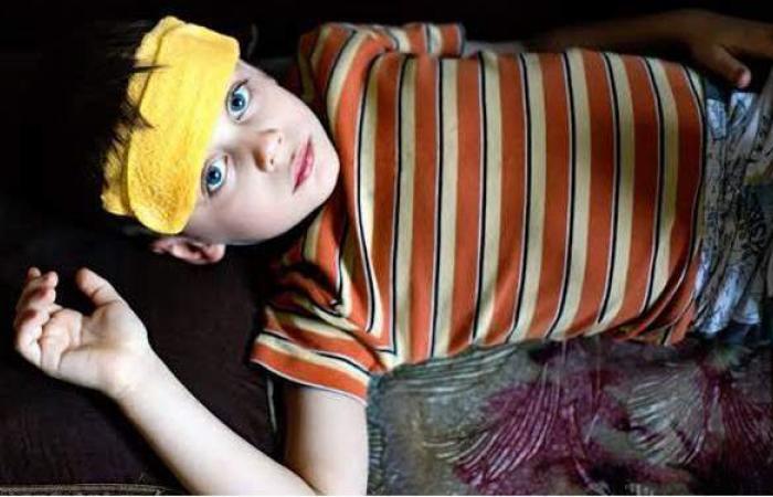 أعراض ضربة الشمس عند الأطفال وطرق العلاج