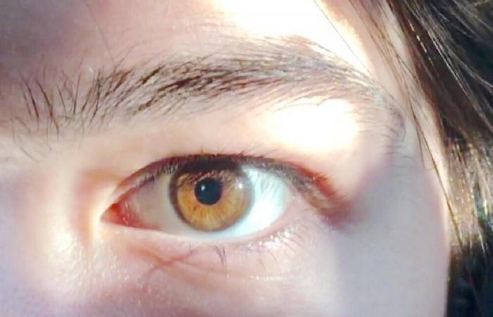 أسباب وأعراض التهاب قزحية العين.. وطرق علاجها
